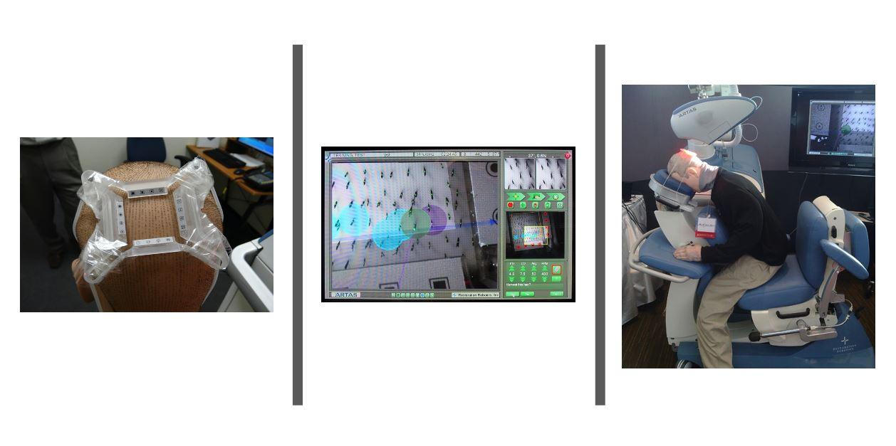Artas-Roboter