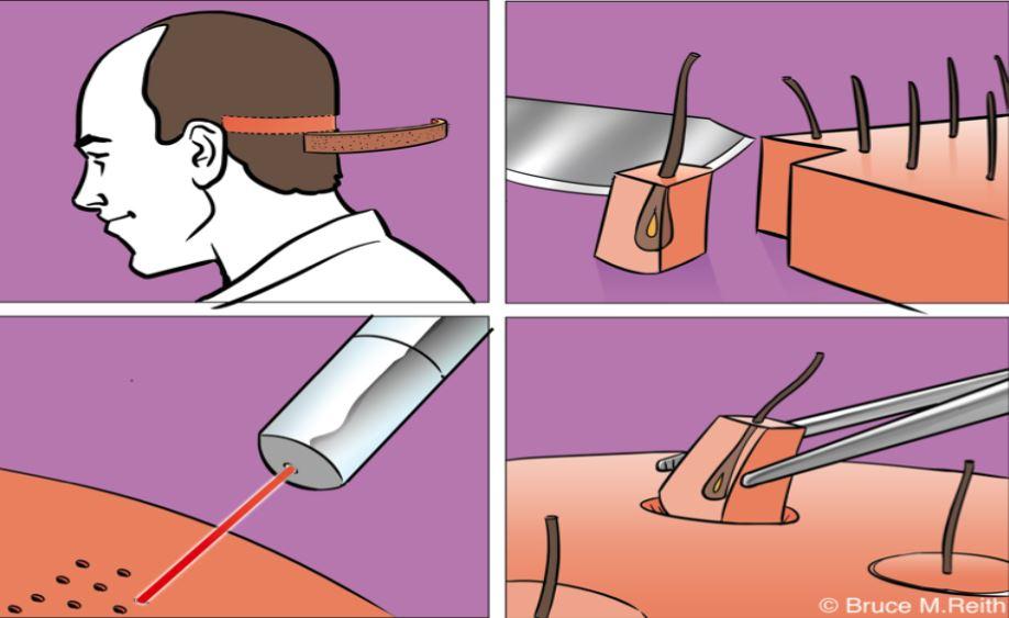 FUT-Streifenmethode